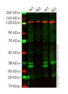 Western blot - Human CCND1 knockout HeLa cell lysate (ab263808)