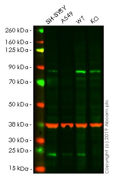 Western blot - Human SOD2 knockout HEK293T cell lysate (ab263835)
