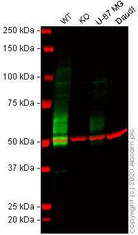 Western blot - Anti-IL-13 receptor alpha 2 antibody [EPR22978-163] - BSA and Azide free (ab263874)