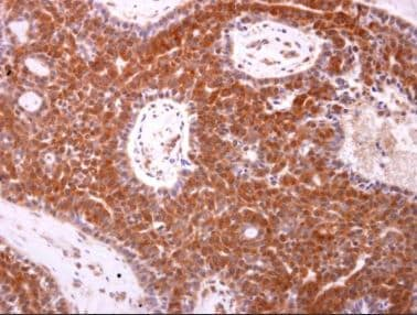 Immunohistochemistry (Formalin/PFA-fixed paraffin-embedded sections) - Anti-Bax antibody (ab263897)
