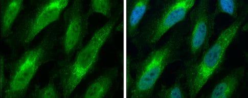 Immunocytochemistry/ Immunofluorescence - Anti-Bax antibody (ab263897)