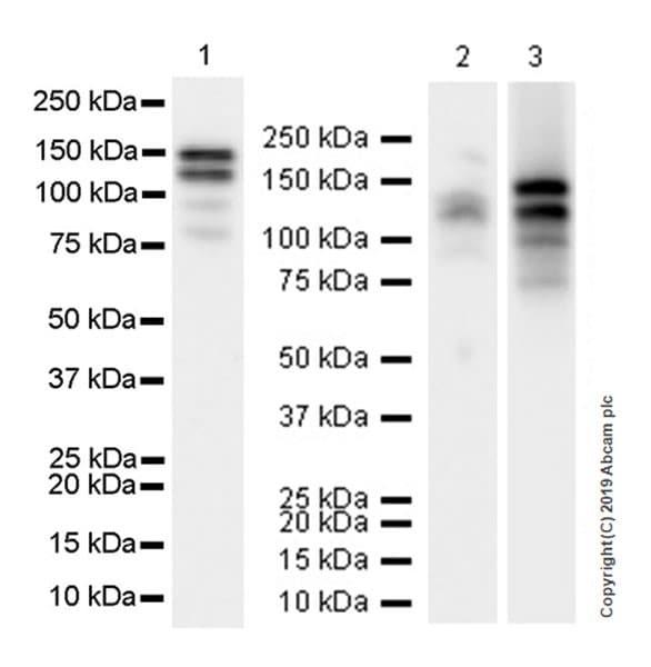 Western blot - Anti-THBS4 antibody [EPR22922-232] (ab263898)