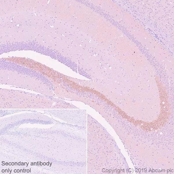 Immunohistochemistry (Formalin/PFA-fixed paraffin-embedded sections) - Anti-BACE1 antibody [EPR22802-233] (ab263901)
