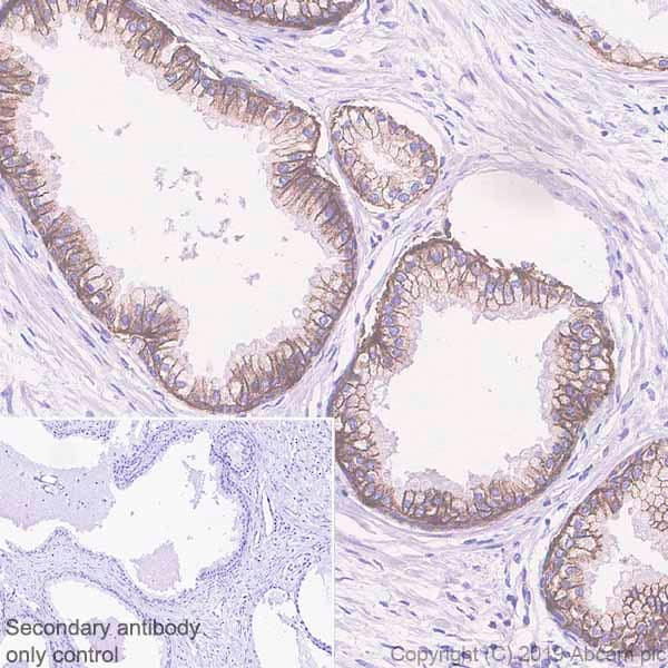 Immunohistochemistry (Formalin/PFA-fixed paraffin-embedded sections) - Anti-IGF1 Receptor antibody [EPR23027-204] (ab263903)
