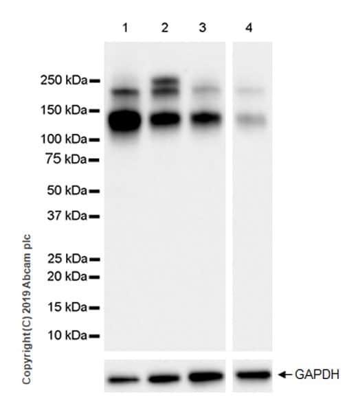 Western blot - Anti-IGF1 Receptor antibody [EPR23027-204] (ab263903)