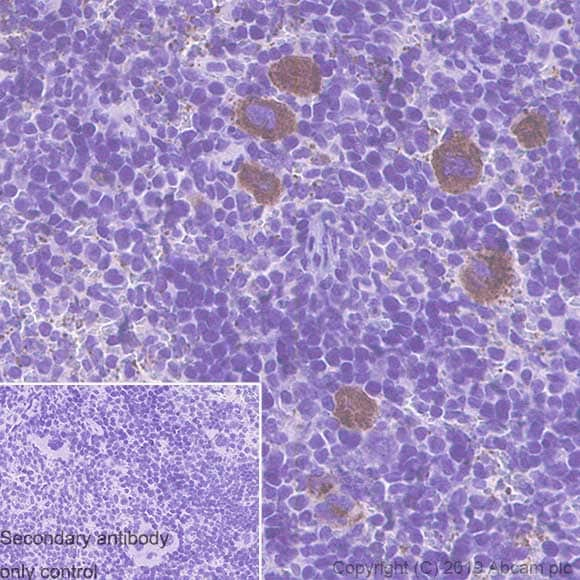 Immunohistochemistry (Formalin/PFA-fixed paraffin-embedded sections) - Anti-Thrombospondin 1 antibody [EPR22928-10] (ab263905)