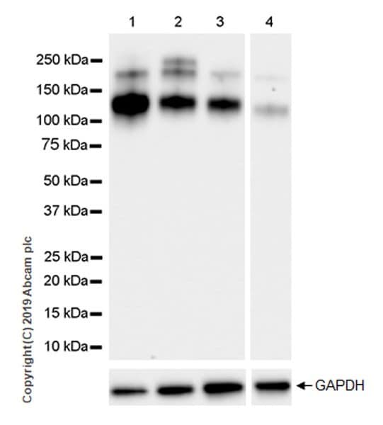 Western blot - Anti-IGF1 Receptor antibody [EPR23027-80] (ab263907)