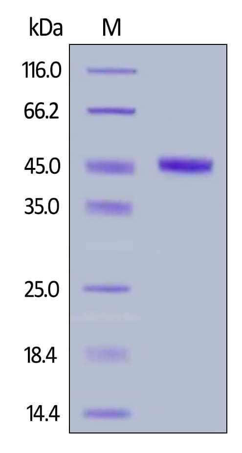 SDS-PAGE - Recombinant Human CBLB protein (His tag) (ab263944)