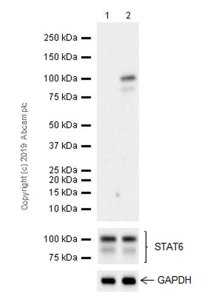 Western blot - Anti-STAT6 (phospho Y641) antibody [EPR22599-78] (ab263947)