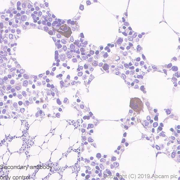 Immunohistochemistry (Formalin/PFA-fixed paraffin-embedded sections) - Anti-Thrombospondin 1 antibody [EPR22928-10] - BSA and Azide free (ab263952)
