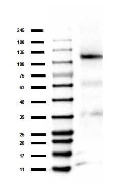 Western blot - Anti-Rb (methyl K860) antibody (ab263969)