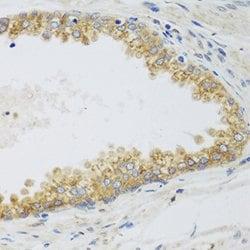 Immunohistochemistry (Formalin/PFA-fixed paraffin-embedded sections) - Anti-SIRT3 antibody (ab264041)
