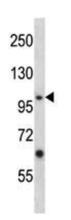 Western blot - Anti-Eph receptor A4/SEK antibody (ab264047)