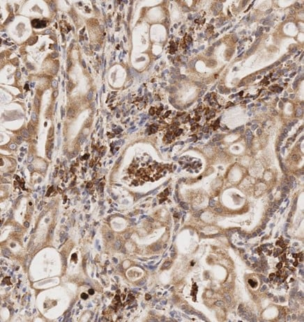 Immunohistochemistry (Formalin/PFA-fixed paraffin-embedded sections) - Anti-MMP2 antibody [6E3F8] (ab264081)