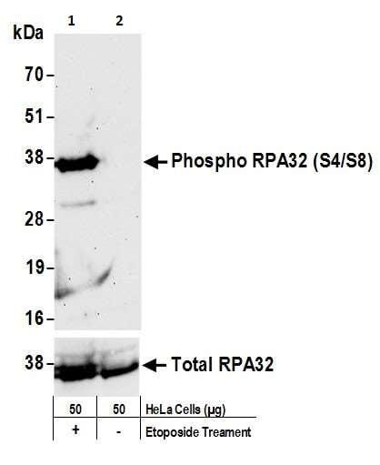 Western blot - Anti-Rpa2 (phospho S4 + S8) antibody (ab264116)