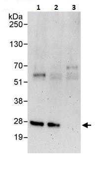 Immunoprecipitation - Anti-RanBP1 antibody (ab264129)