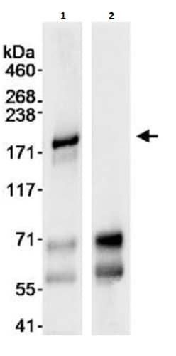 Immunoprecipitation - Anti-BACH1/BRIP1 antibody (ab264132)