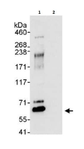 Immunoprecipitation - Anti-WASP/Wiskott-Aldrich syndrome protein antibody (ab264134)