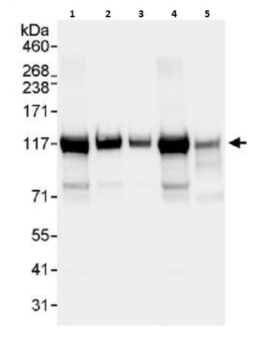 Western blot - Anti-Matrin 3 antibody (ab264136)