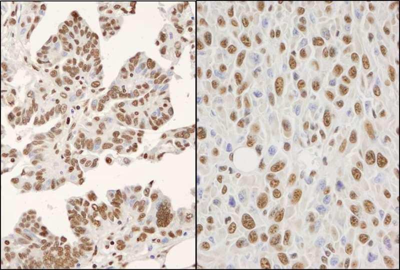 Immunohistochemistry (Formalin/PFA-fixed paraffin-embedded sections) - Anti-hnRNP K antibody (ab264138)