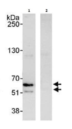 Immunoprecipitation - Anti-hnRNP K antibody (ab264139)
