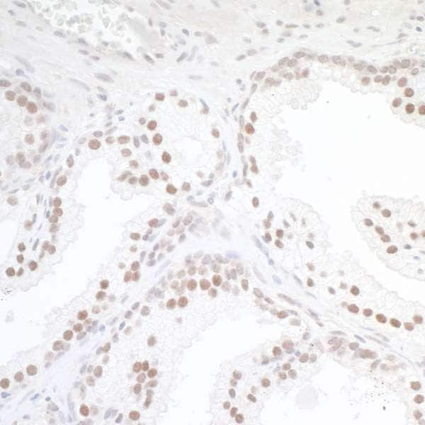 Immunohistochemistry (Formalin/PFA-fixed paraffin-embedded sections) - Anti-TORC1 antibody (ab264144)
