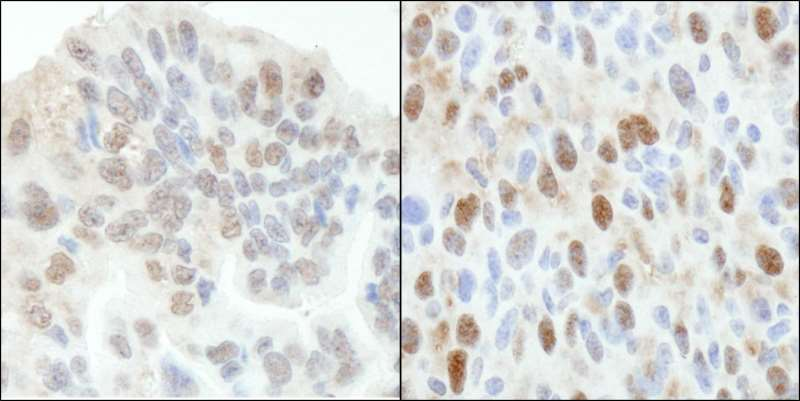 Immunohistochemistry (Formalin/PFA-fixed paraffin-embedded sections) - Anti-53BP2/ASPP2/BBP antibody (ab264151)