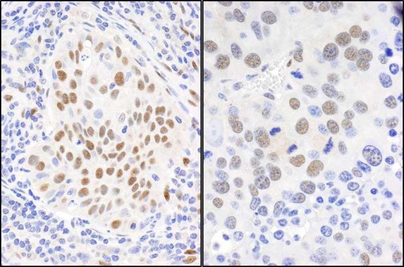 Immunohistochemistry (Formalin/PFA-fixed paraffin-embedded sections) - Anti-Fox2 / RBM9 antibody (ab264154)