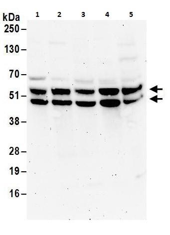 Western blot - Anti-Fox2 / RBM9 antibody (ab264154)