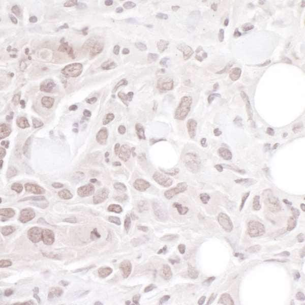 Immunohistochemistry (Formalin/PFA-fixed paraffin-embedded sections) - Anti-Geminin antibody (ab264157)