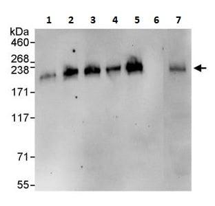 Immunoprecipitation - Anti-ADAMTS13 antibody (ab264162)