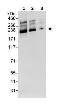 Western blot - Anti-SMARCA2 / BRM antibody (ab264163)