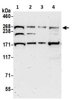 Western blot - Anti-SPTBN2 antibody (ab264178)