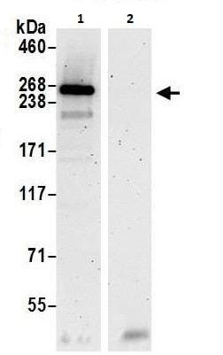 Immunoprecipitation - Anti-SPTBN2 antibody (ab264178)