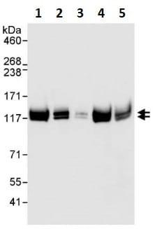 Western blot - Anti-E1 Ubiquitin Activating Enzyme 1/UBA1 antibody (ab264182)