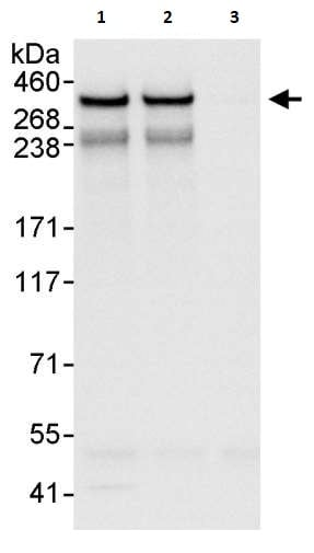 Immunoprecipitation - Anti-NCOR2/SMRT antibody (ab264188)