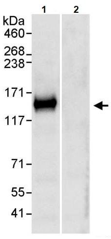 Immunoprecipitation - Anti-TRIM37/MUL antibody (ab264189)