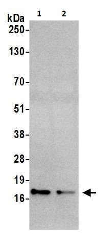 Western blot - Anti-CDKN2A/p16INK4a antibody (ab264192)