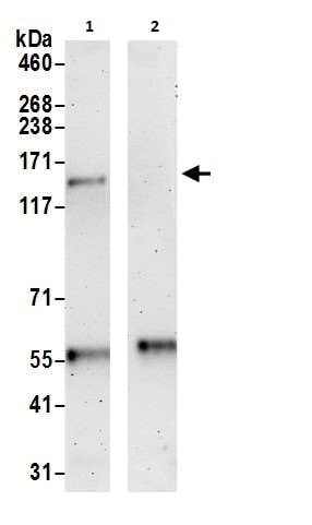 Immunoprecipitation - Anti-Slingshot homolog 1/SSH1 antibody (ab264195)