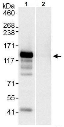 Immunoprecipitation - Anti-TFII I antibody (ab264198)