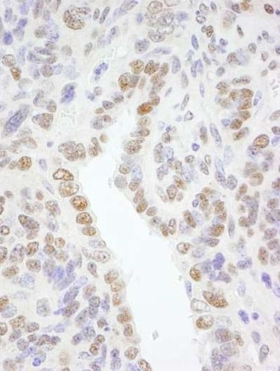 Immunohistochemistry (Formalin/PFA-fixed paraffin-embedded sections) - Anti-TFII I antibody (ab264198)