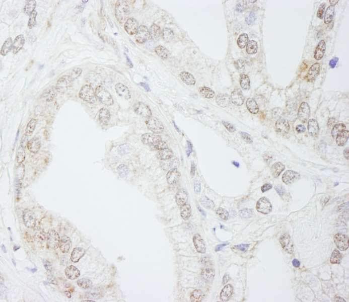 Immunohistochemistry (Formalin/PFA-fixed paraffin-embedded sections) - Anti-METTL3 antibody (ab264211)