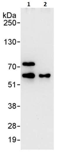 Immunoprecipitation - Anti-METTL3 antibody (ab264211)