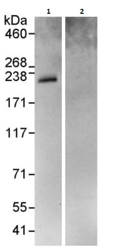 Immunoprecipitation - Anti-Rb1cc1 antibody (ab264214)