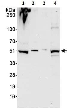 Western blot - Anti-PRKAR2 antibody (ab264220)