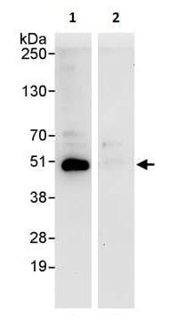 Immunoprecipitation - Anti-PRKAR2 antibody (ab264220)