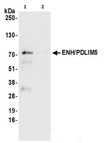 Immunoprecipitation - Anti-PDLIM5/ENH antibody (ab264223)