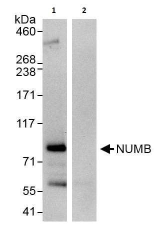 Immunoprecipitation - Anti-NUMB antibody (ab264224)