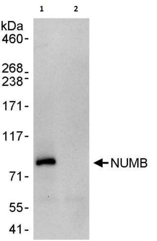 Immunoprecipitation - Anti-NUMB antibody (ab264225)