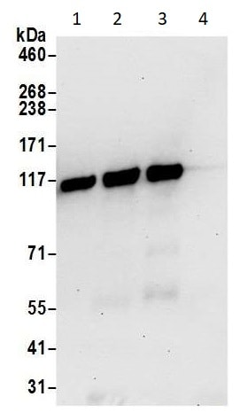 Immunoprecipitation - Anti-NFkB p105 / p50 antibody (ab264234)